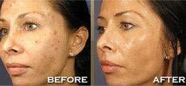 dermatologist in Delhi - Chemical Peels By Best Dermatologist In Delhi For Fairer Looks