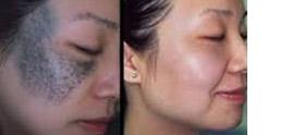 dermatologist in Delhi - How Does The Best Dermatologist In Delhi Help In Treating With Nd:YAG Laser