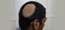 dermatologist in Delhi - What is alopecia areata?