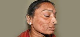 dermatologist in Delhi - Fairness creams can be very harmful for skin.