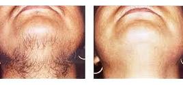 dermatologist in Delhi - Laser Hair Removal