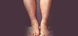 dermatologist in Delhi - Polyarteritis nodosa