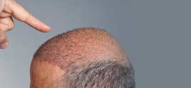 dermatologist in Delhi - Don't Find Solace in Being 'Bald and Beautiful' – Be Bold Enough for Hair Transplant and Be 'Bold and Beautiful'