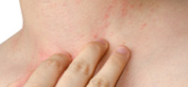 dermatologist in Delhi - Best Eczema Treatments in Delhi