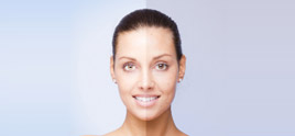 dermatologist in Delhi - Dermatologist in Delhi Treating Melasma or Pigmentation