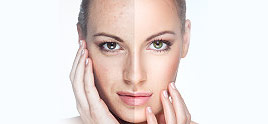dermatologist in Delhi - Cosmetic Surgery – To Win the Struggle with a Healthy Looking Skin!