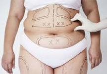 Liposuction treatment In Delhi