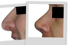 Rhinoplasty treatment In Delhi